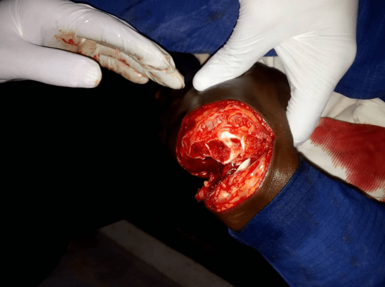 Blood flows as Oro worshippers and Muslims clash in Oyo state (graphic photos)