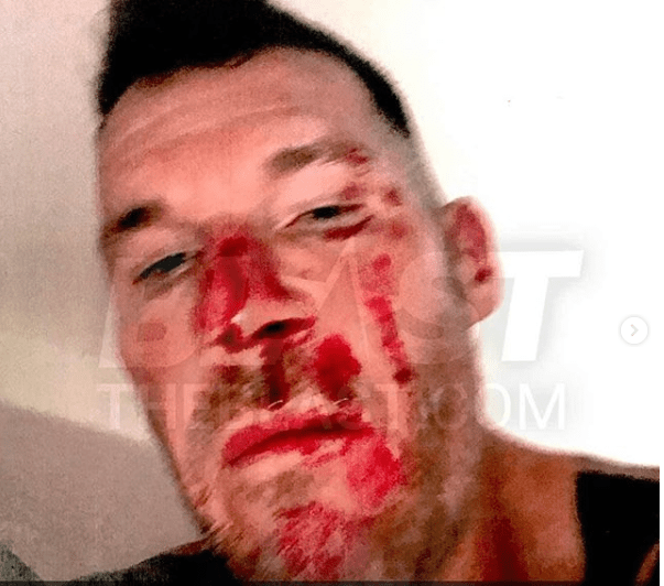 US musician Tim Commerford left bloodied after his estranged wife allegedly assaulted him?