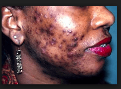 Ijebu housewife reveals amazing skincare secret (used by Nollywood actresses) that removes skin blemishes naturally and causes black spots on your skin to melt off as easily as butter in a microwave!