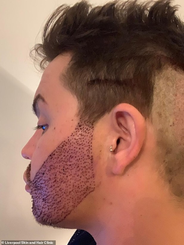 TV personality Bobby Norris who spent ?9,000 on beard transplant, shows off result (Photos)