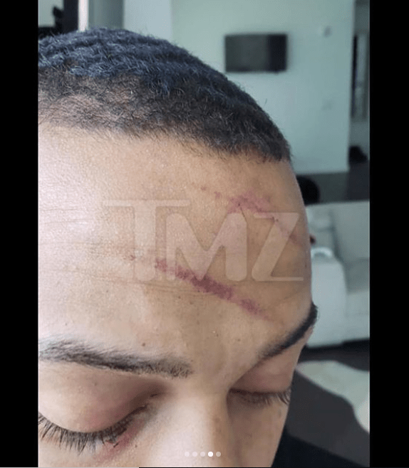 Bow Wow shows off Injuries including bite marks and deep scratches from fight with his girlfriend (See photos)