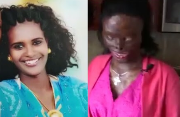 Image result for Community rally behind Ethiopian woman disfigured, blinded by acid attack by her abusive husband after she asked for a divorce