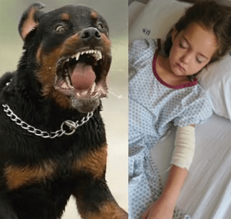 Photos: Rottweiler attacks six-year-old in South Africa, inflicts serious injuries on her