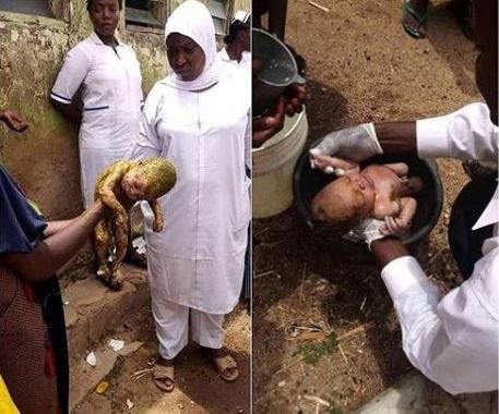 Image result for Hospital workers rescue newborn baby thrown inside a toilet in Bauchi State