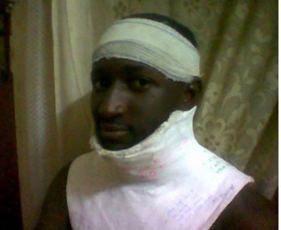 First ever winner of Big Brother Naija,?Katung Aduwak shares photos from a ghastly car crash he survived 15-years ago