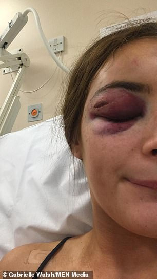 "Teenage girl punched unconscious because she told man: ""I"