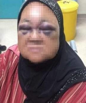 Man assaults wife