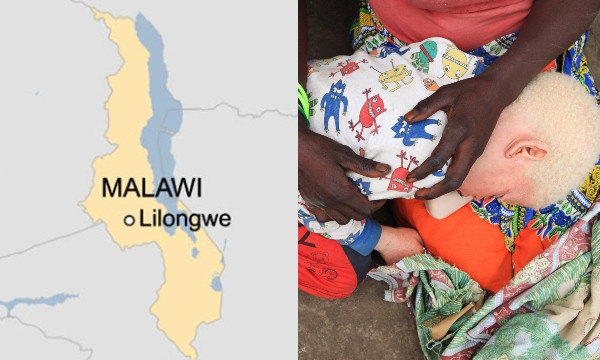 Malawi court sentences three to death for killing an albino to bring wealth and luck