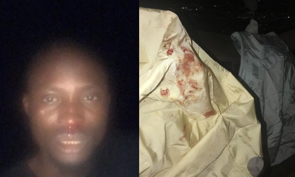 Actor Jigan Babaoja survives a ghastly car accident