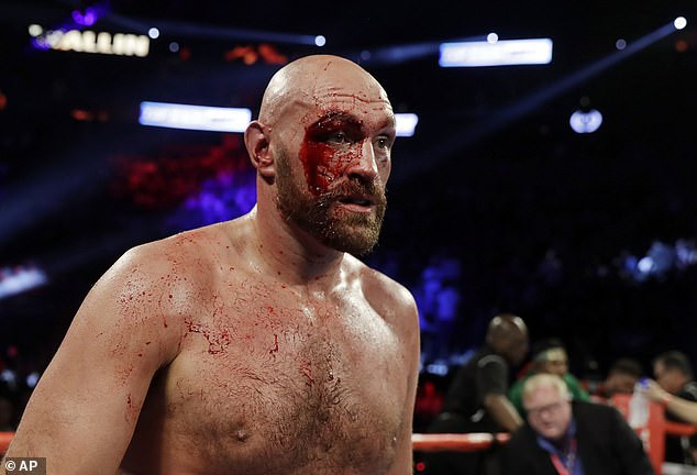 See more photos of the injury Tyson Fury suffered as he