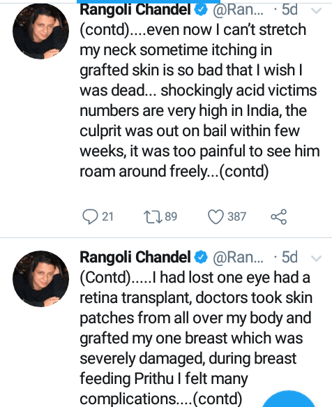 """""""The guy whose proposal I refused threw one litre of acid on my face"""" - Sister of popular Bollywood actress shares her heart-wrenching acid attack story"""