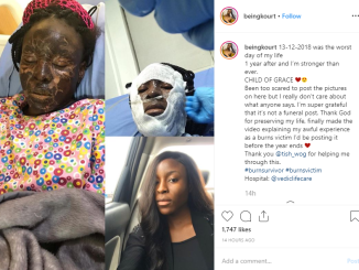 Been too scared to post the pictures – Nigerian model marks 1 year of surviving a fire incident