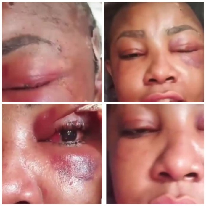 Angela Okorie shows bullet injuries on her head, thanks God for saving her from assassins (video)