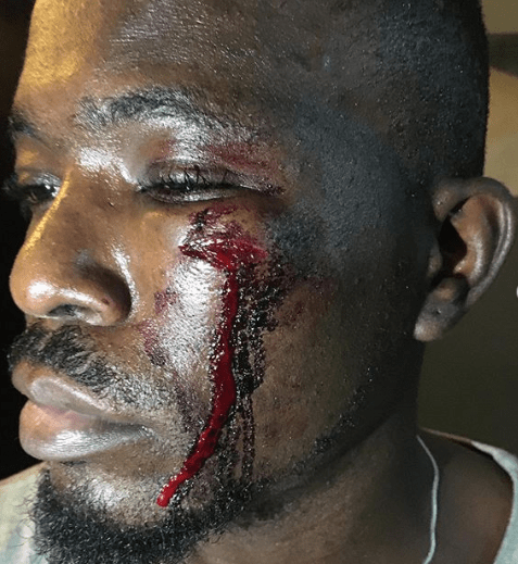 Man asks for justice after he was battered by Lagos touts for no reason
