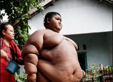 World?s fattest boy shows off incredible body transformation after losing more than 30 stone (See Photos)