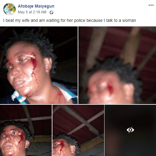 Outrage as man batters his wife then brags about it on Facebook by sharing photos of her bleeding face