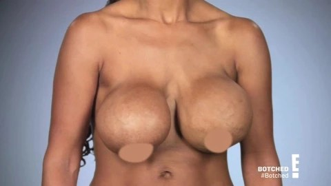 Fitness model who was left with ?rippling? boobs after she hired a dentist and unlicensed surgeon to do boob job has finally gotten her dream breasts ( photos)