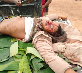 Notorious kidnapper and Cultist killed in Imo (graphic photos)