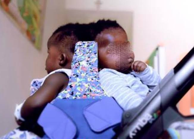 Twins conjoined at the head separated successfully in first-of-its-kind surgery