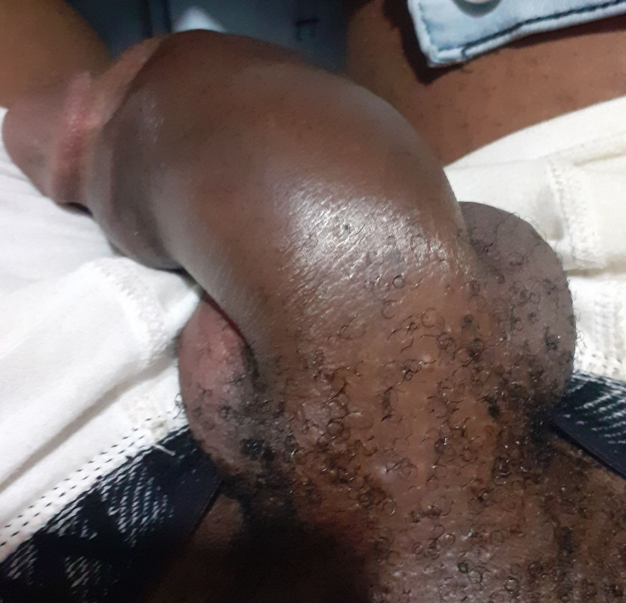 Nigerian man suffers penile fracture while engaging in rigorous sex with his partner (graphic photos)