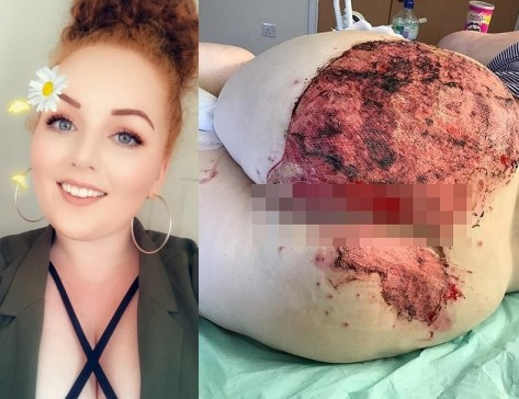https://bluebloodz.com/index.php/2020/07/27/graphic-photos-:-woman-suffers-horrific-burns-on-her-buttocks-'-after-falling-on-a-radiatior-pipe/‎(opens in a new tab)