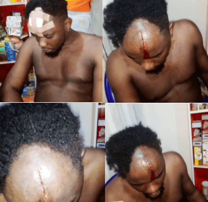 Moment police officers attack a man in his home and broke his head after he