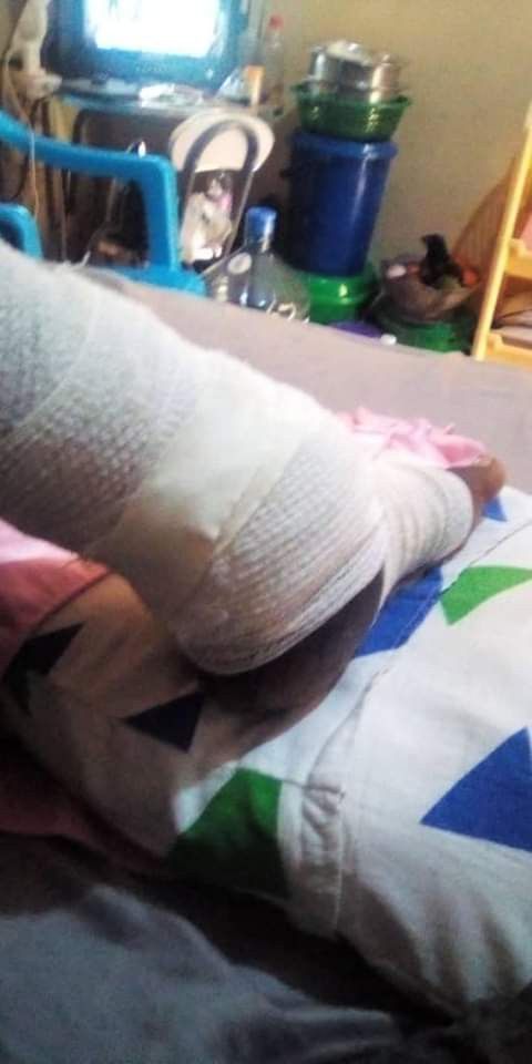 Man has leg amputated after he fell into a trench while chasing thieves that stole his phone