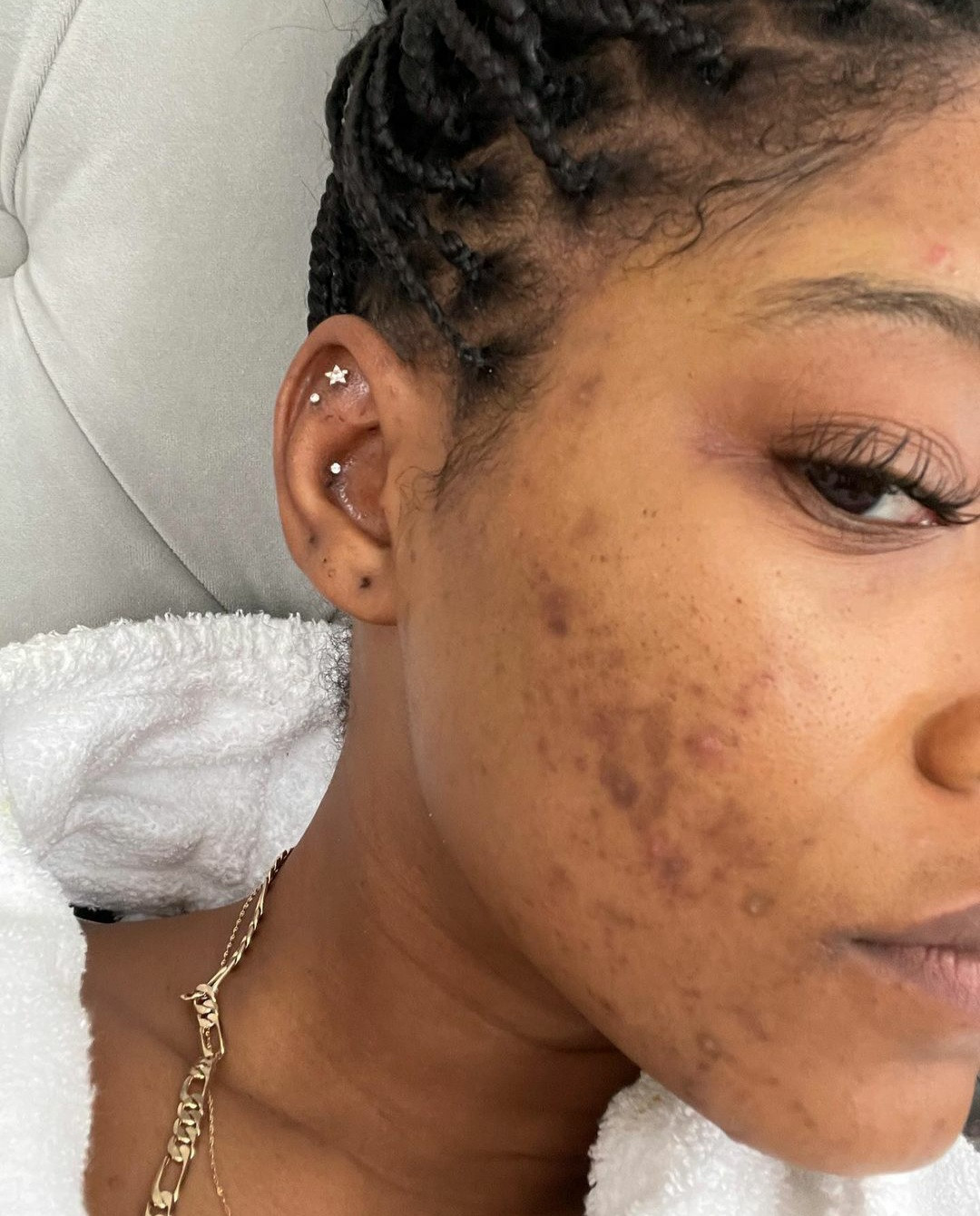 """""""My skin has made me sad many nights"""" Keke Palmer says as she reveals her struggle with acne caused by PCOS"""