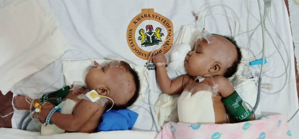 Conjoined female twins separated at the University of Ilorin Teaching Hospital (photos)