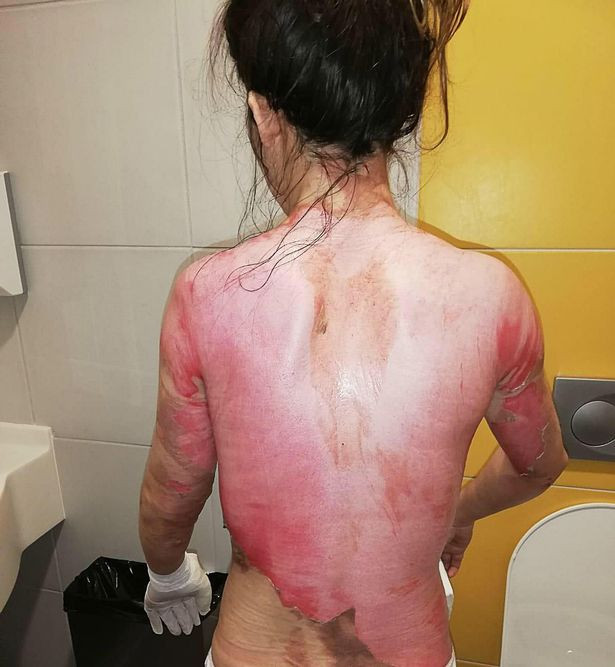 Angry man pours boiling water on wife for waking him to surprise him with breakfast in bed