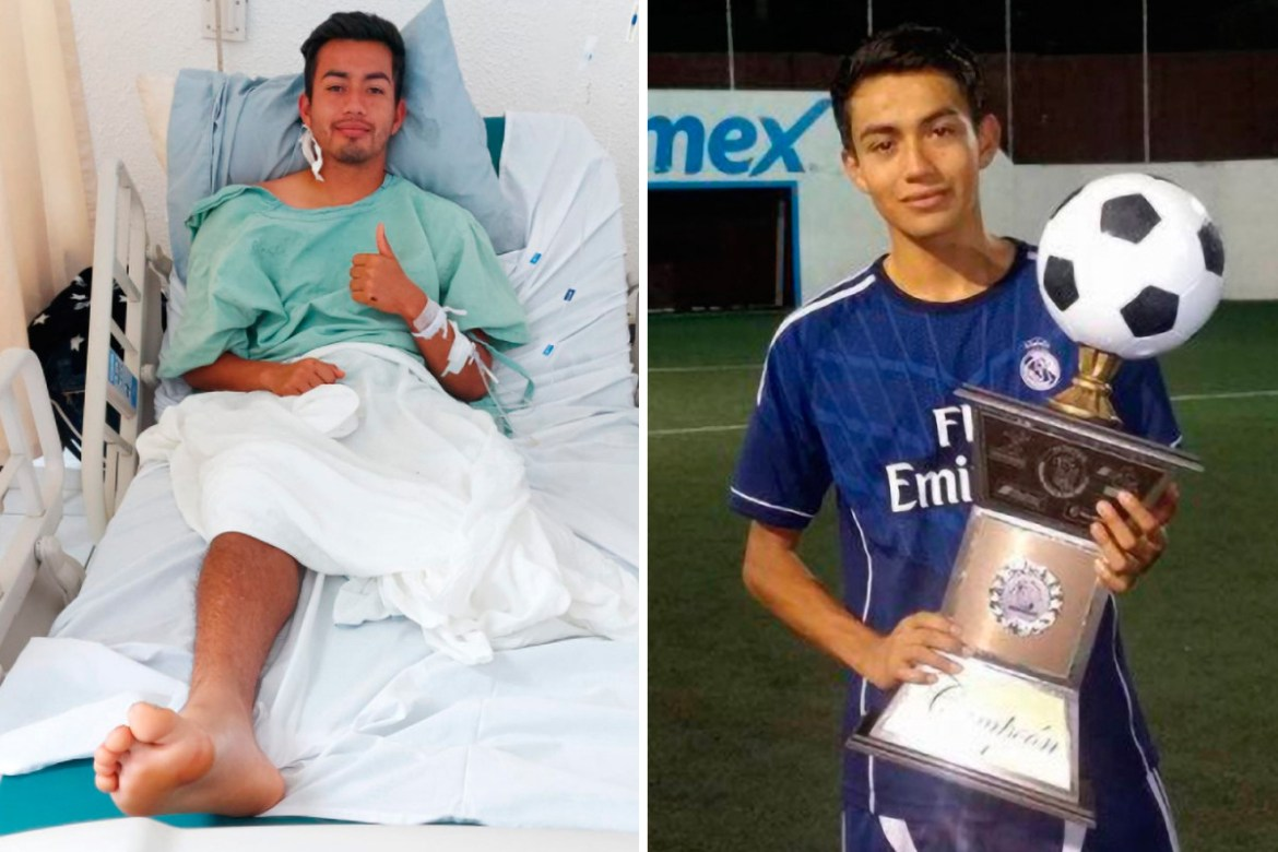 Mexican footballer, Rodrigo Alain Cuevas has leg amputated after electric shock (photos)