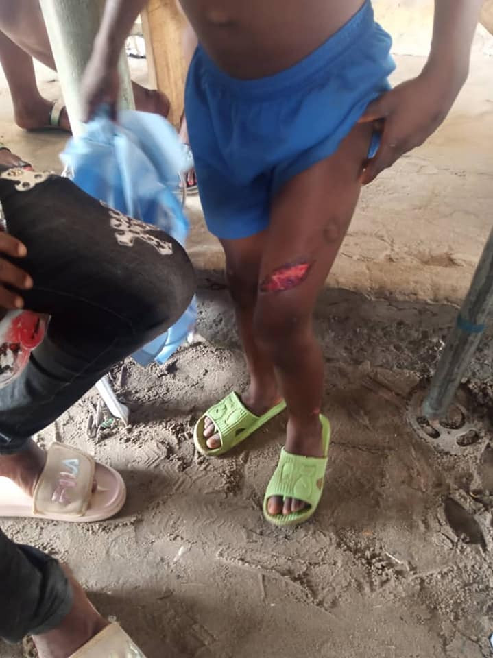 Man arrested for using hot knife to brutalize his son in Delta State