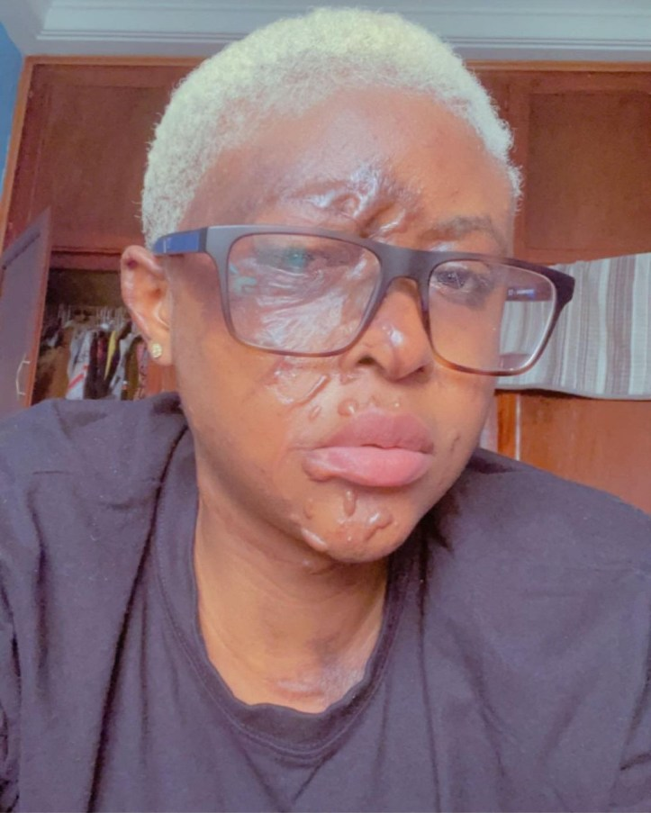 Woman narrates how her jealous neighbour and her man disfigured her face with acid because she thinks she