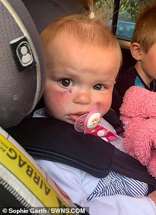 Dog bites 18-month-old baby in the face, missing her eye by fraction of an inch in unprovoked attack