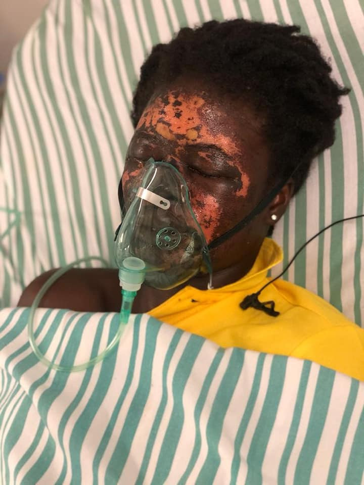 Update: Ghanaian man sentenced to 10 years in prison for pouring acid on wife