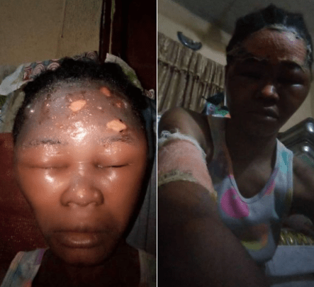 Lagos state government to prosecute employer who allegedly assaulted her sales lady (photos)