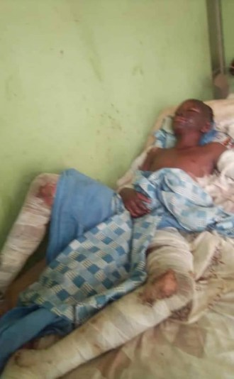 """""""They spent 6 months in the hospital"""" - Man narrates how his two children survived fire explosion that killed bride-to-be, 8 other kids in Ebonyi"""
