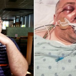Man left unrecognizable and put in coma after he's brutally beaten-See the reason