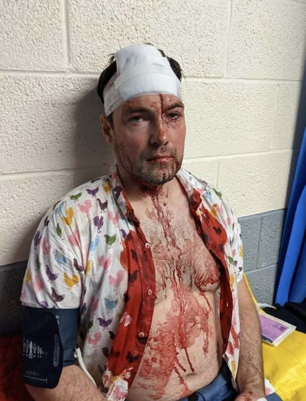 Gay couple beaten with bottles and knocked unconscious by gang of men in homophobic attack (photos)