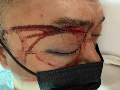 Uber driver suffers eye damage after being bashed in the face with cell phone for refusing to pick up an
