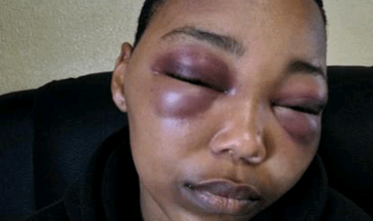"""21-year-old South African woman horribly beaten by boyfriend says police instructed her to """"go and talk things through with him"""""""