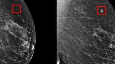 Photo of Científicos del MIT crean dispositivo puede predecir el cáncer de mama 5 años antes