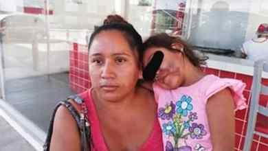 Photo of Recoge a su hija del kínder y se la entregan desfigurada