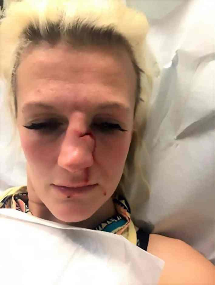 Cindy Dandois golpeada