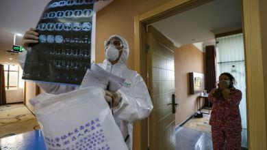 Photo of Cómo el coronavirus ataca el cuerpo humano
