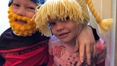 Photo of Niño casi pierde el ojo por salvar a su hermanita de un perro
