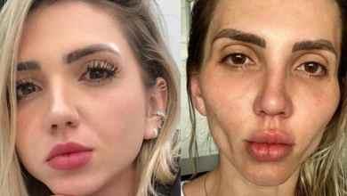 Influencer-se-deforma-el-rostro-tras-bichectomia