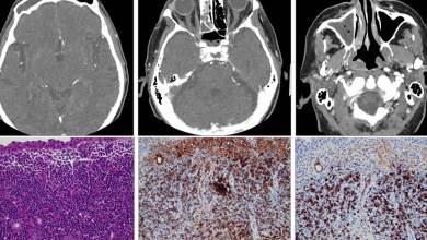 Hombre-pierde-la-visión-por-bacteria-tras-contraer-Covid-19