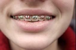 فائض ضروري رائع الة تقويم الاسنان Sjvbca Org