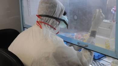 Photo of الصحة تنفي إصابة أيّ شخص بإنفلونزا الخنازير في إربد
